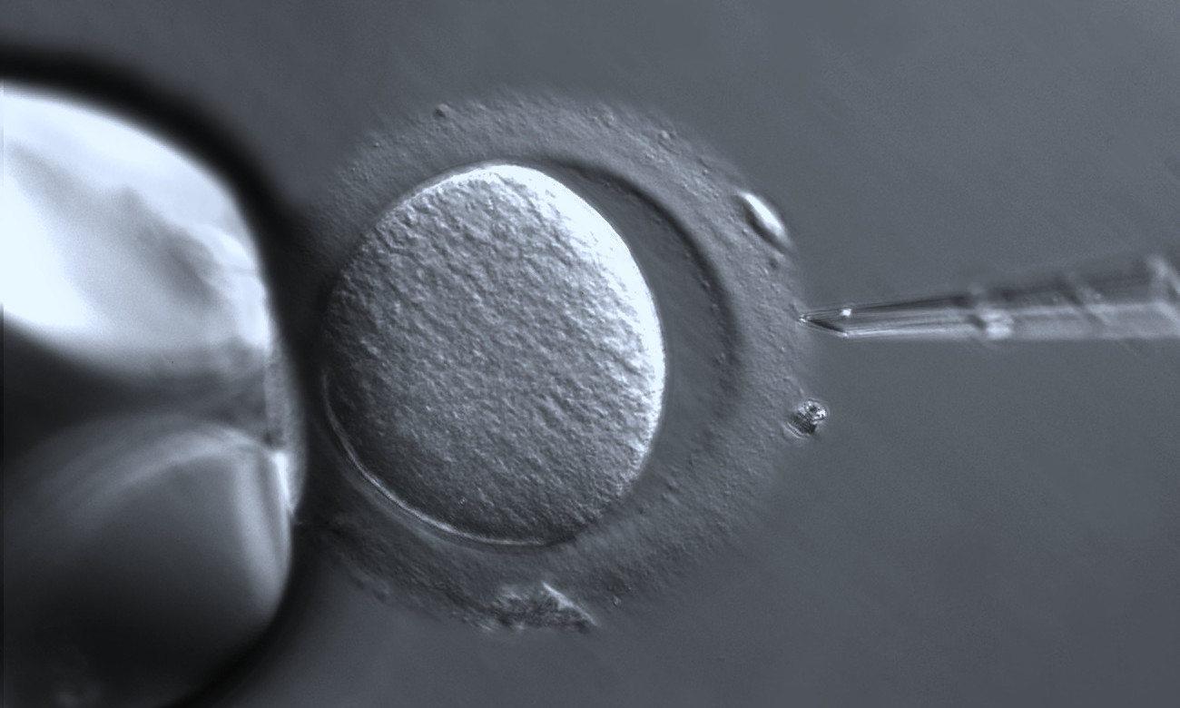 Human oocyte with Zona pellucida, in vitro fertilization (IVF) and assisted reproductive technology (ART) with ZEISS Axio Vert.A1 and PlasDIC contrasting method